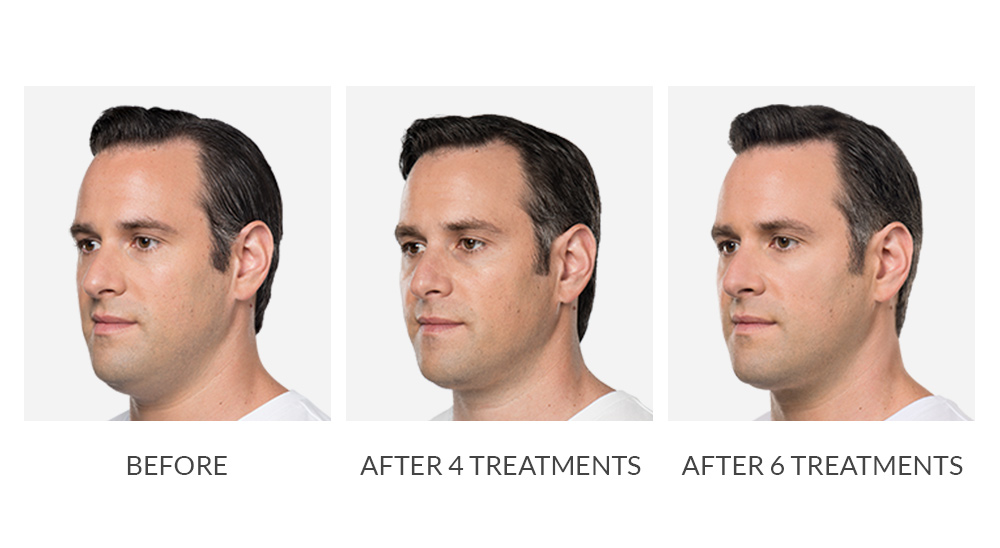 Before and after Kybella results